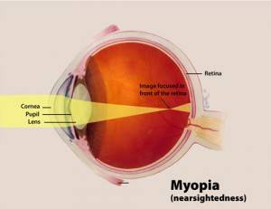 diagram explaining myopia